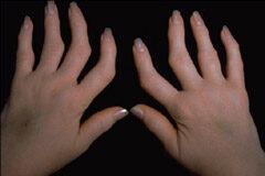 reumás ujj térdízület kezelés akut synovitis