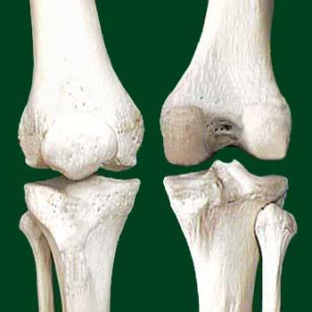 térdízület artrózis 3 fok