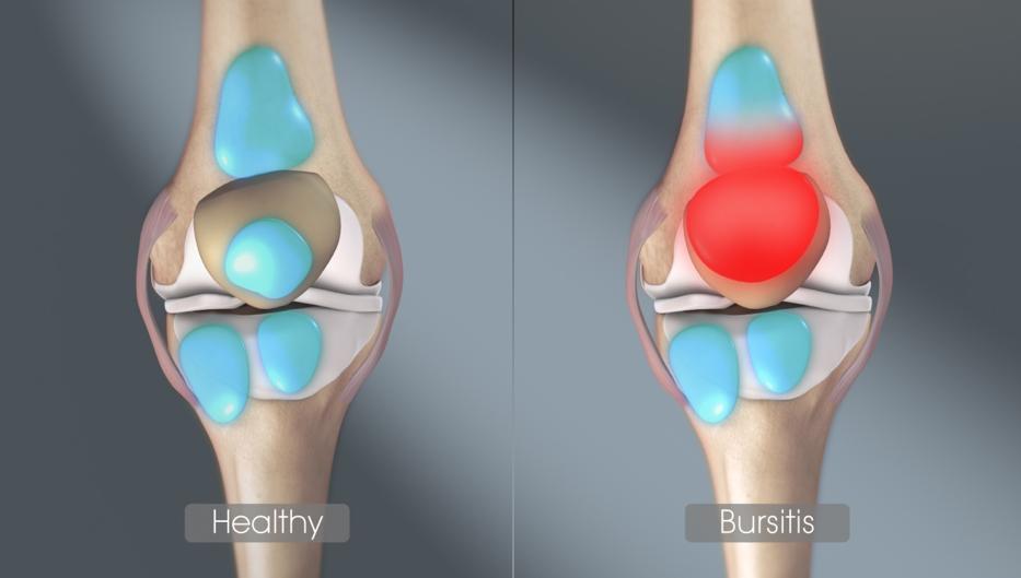 közös kezelési készítmények sportolók számára fáj a lábak térdízületei, amelyek segítenek
